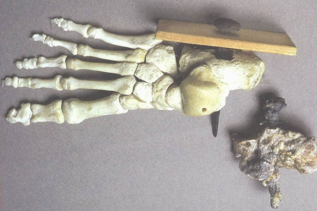 16.01.10.B. CRUCIFIED ANKLE BONE ATTACHED TO OLIVE WOOD (3)
